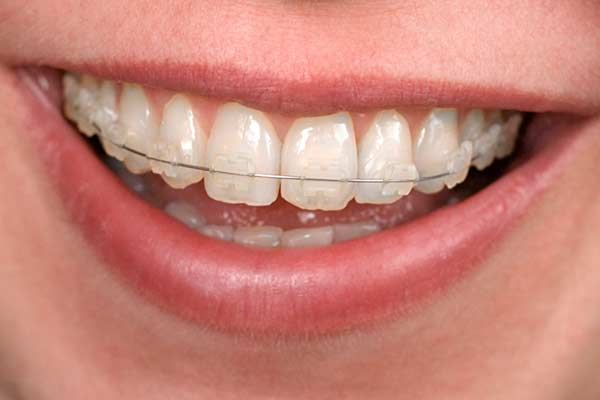 Clear Braces in the Greater Hartford Area