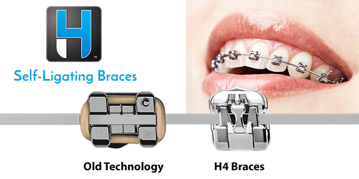 H4 Braces in Newington & Greater Hartford