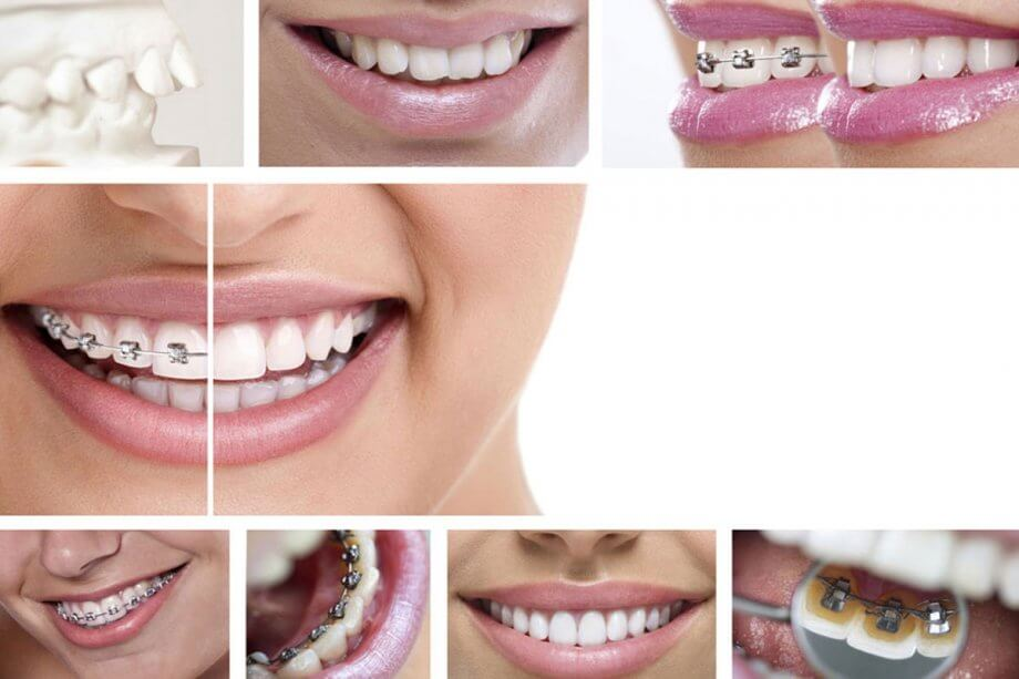 Getting Braces: What You Should Know